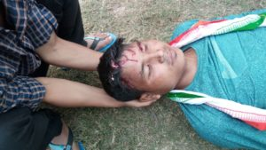 One of the injured in the police firing at Maibang.