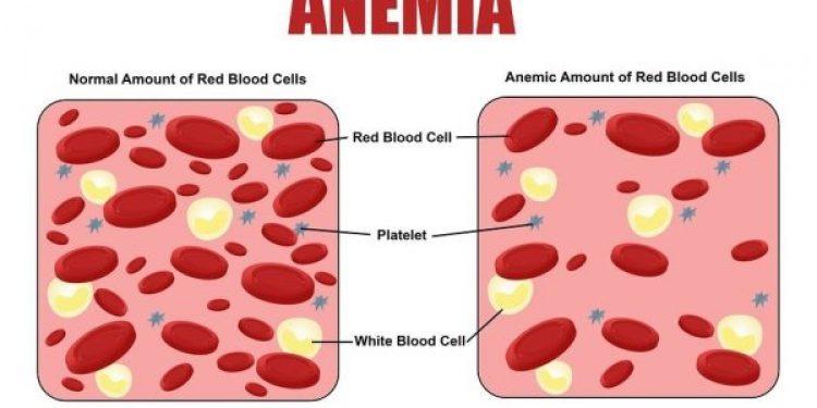 low hemoglobin