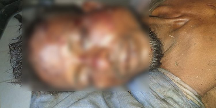 Hussain Ali, a resident of Raikata Sandanpur in Hojai district, who was killed by a mob. Image credi - Northeast Now