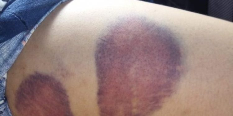 Marks of police torture on one woman's thigh.