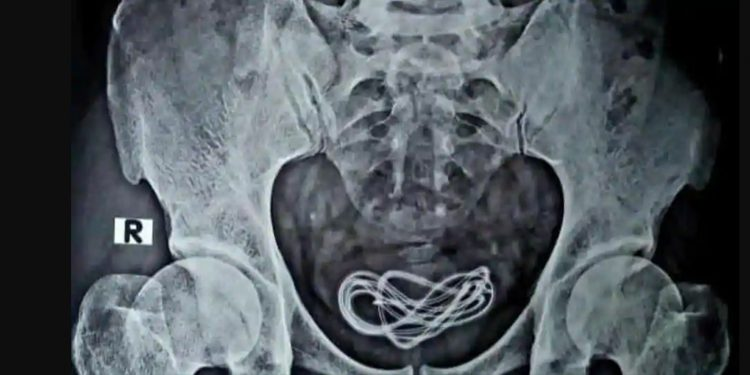 An X-ray of a 30-year-old man's abdomen shows the mobile charger cable. A doctor performed a surgery to remove the mobile phone charger cable inside his urinary bladder. Image credit: Hindustan Times