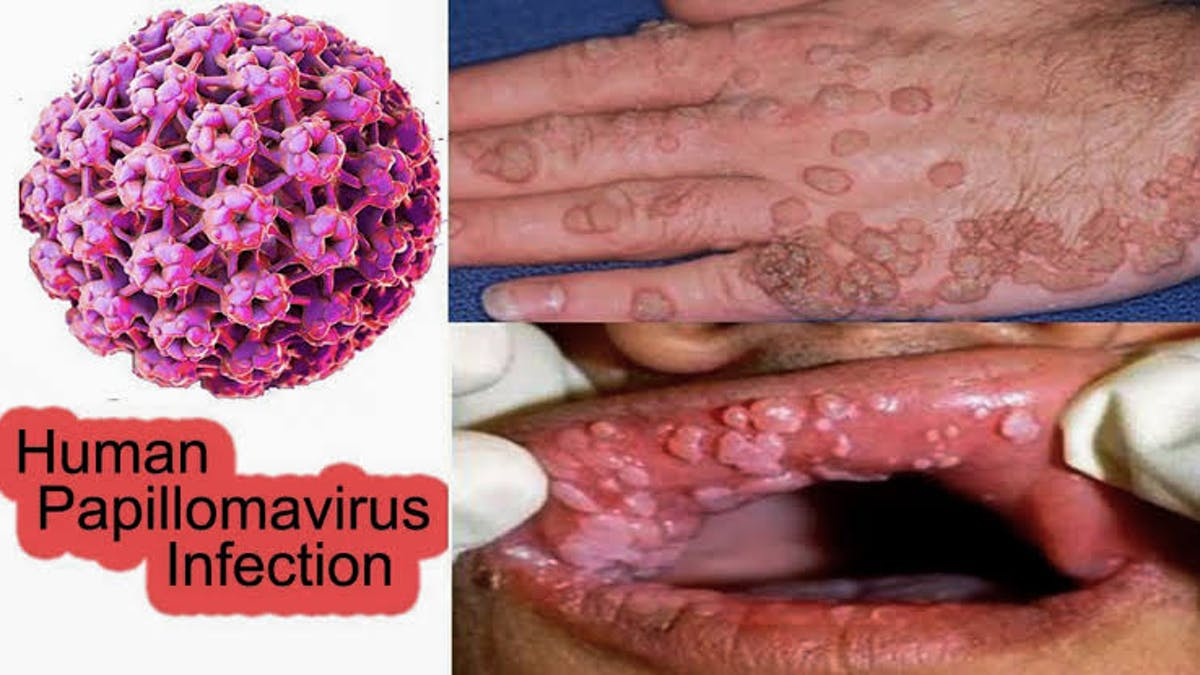 Papillomavirus infections and human genital cancer