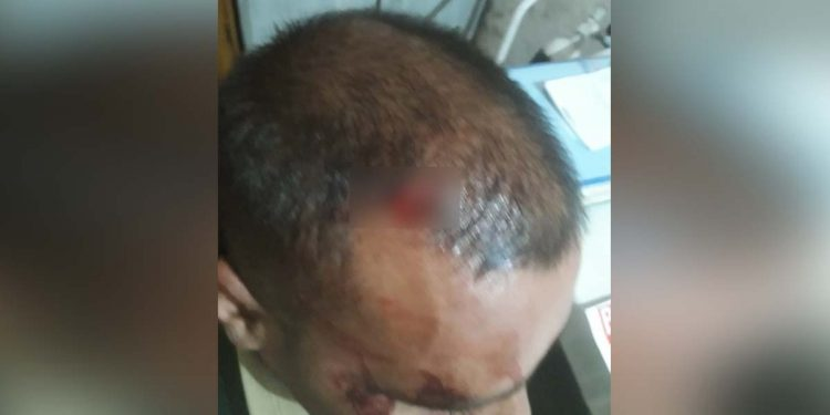 BSF injured by cattle smugglers