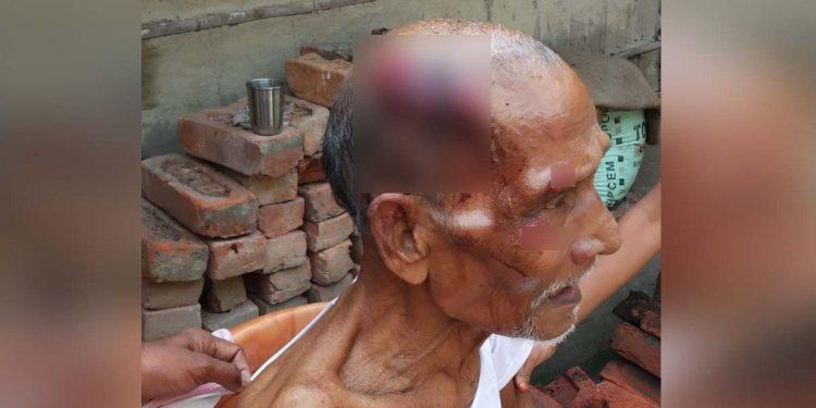 Injured man in earthquake
