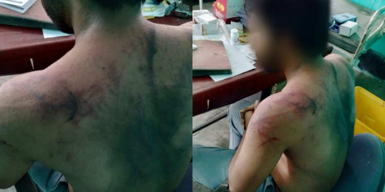 Assam Doctor assault case: Hojai Police swings into action, arrest 24 persons 1